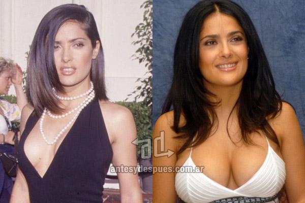 fotos antes y despues de usar esteroides